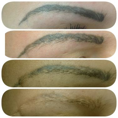 Tattoo Collection : 20 trending eyebrow tattoo removal ...